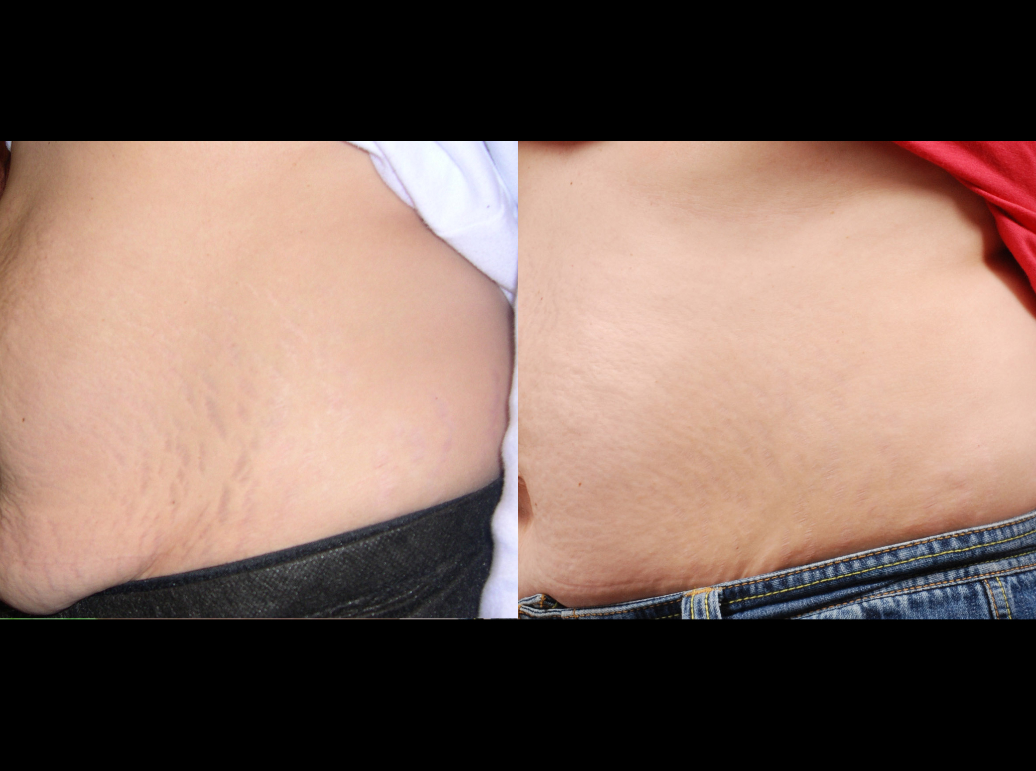 Stretch Marks - Old & New