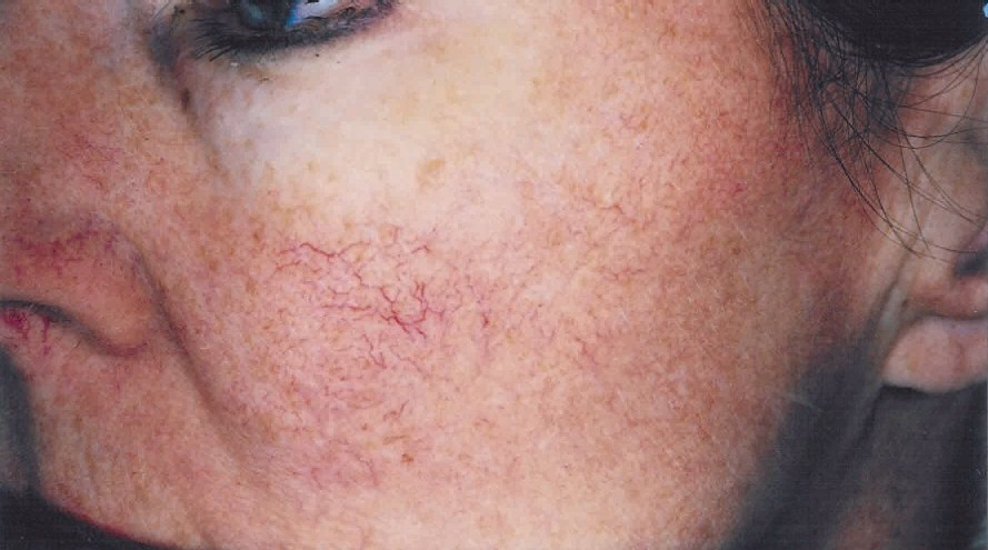 Rid Your Skin Of Age Spots And Lesions With Our Photofacials